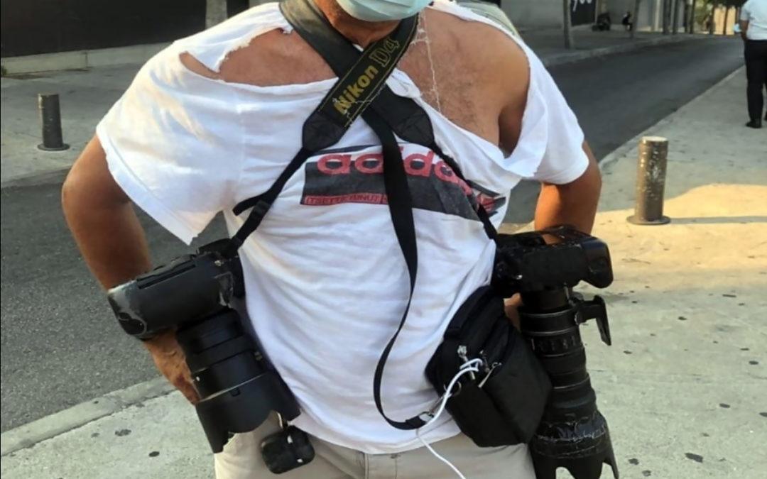 نقيب المصورين الصحافيين: لن نسكت عن المعتدين على الزملاء المصورين وسنلاحقهم